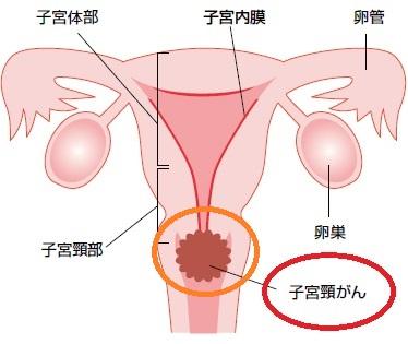 子宮頸がんの説明
