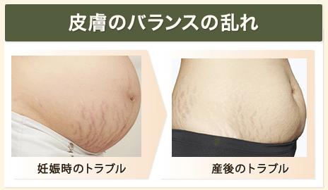 肌の乾燥で皮膚が硬くなるから妊娠線ができる