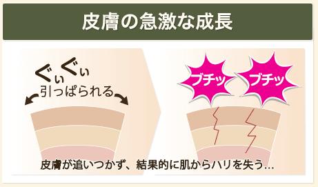 皮膚が急成長して割れるから妊娠線ができる